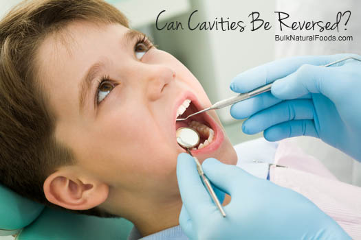 Can Cavities Be Reversed?