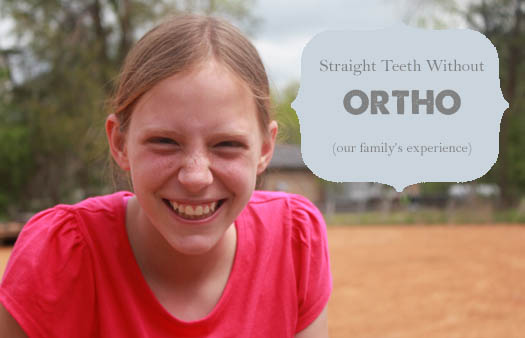 Straght Teeth Without Ortho