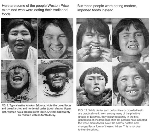 Weston Price's photographs of Eskimo people: some with healthy teeth and some with dental problems