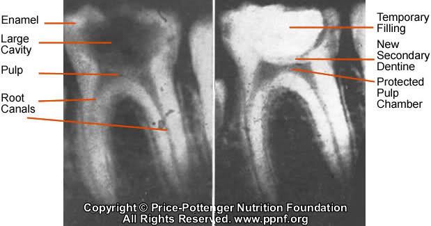 Photo Credit: Price-Pottenger Nutrition Foundation